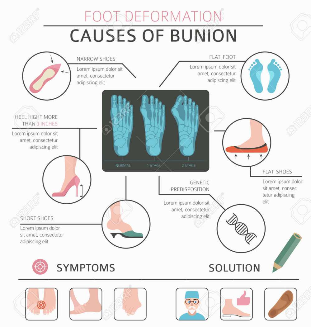 medium resolution of foot deformation as medical desease infographic causes of bunion vector illustration stock vector