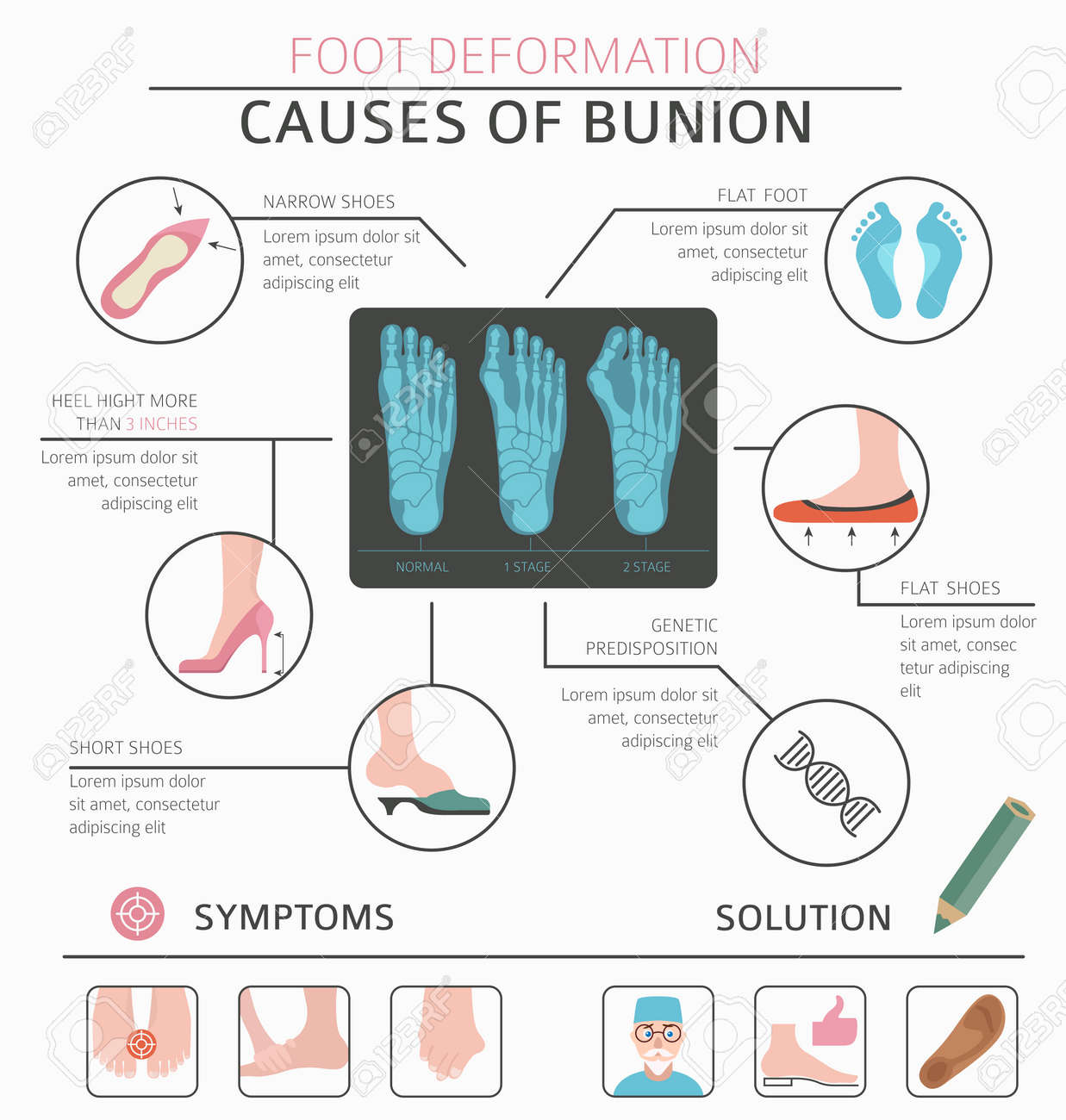 hight resolution of foot deformation as medical desease infographic causes of bunion vector illustration stock vector