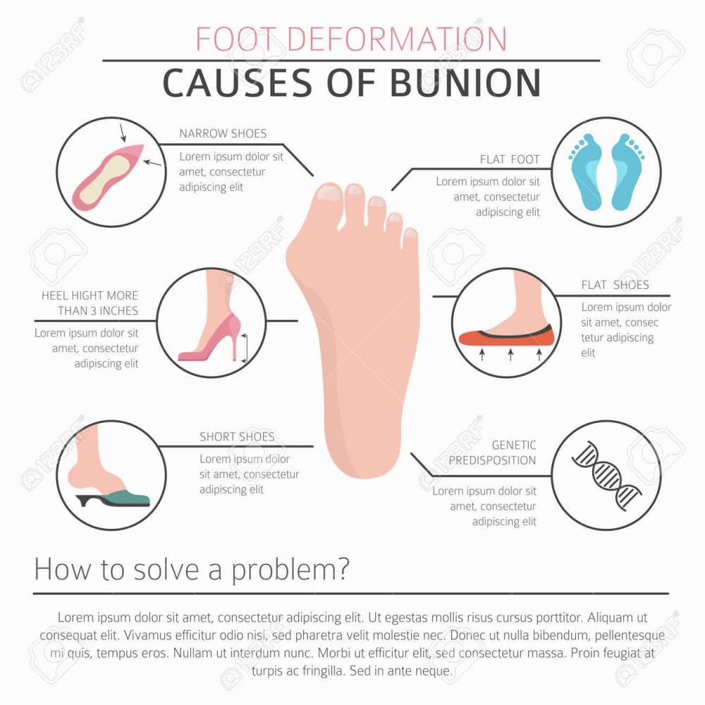 medium resolution of diagram of bunion wiring diagrams diagram of bunion