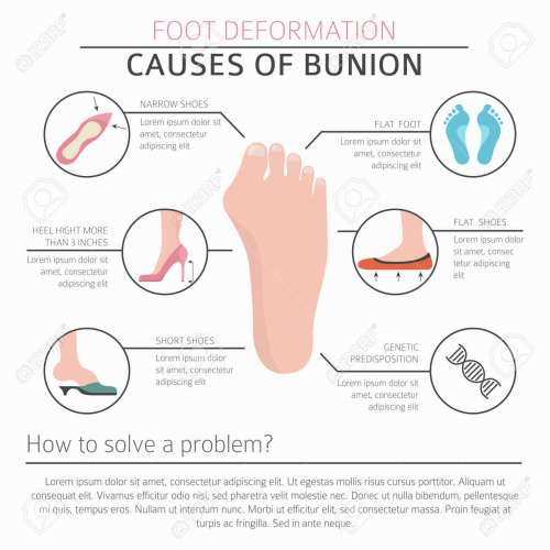 small resolution of diagram of bunion wiring diagrams diagram of bunion
