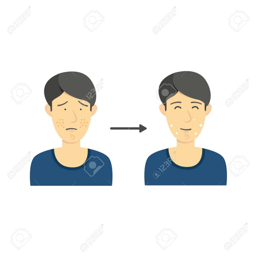 medium resolution of black hair male from acne face to clean face without acne diagram infographic illustration stock vector