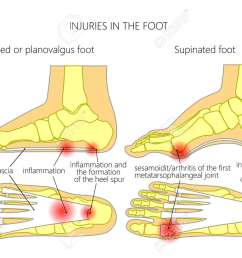 injuries in the foot plantar fasciitis heel spur and sesamoidit used gradient [ 1300 x 928 Pixel ]