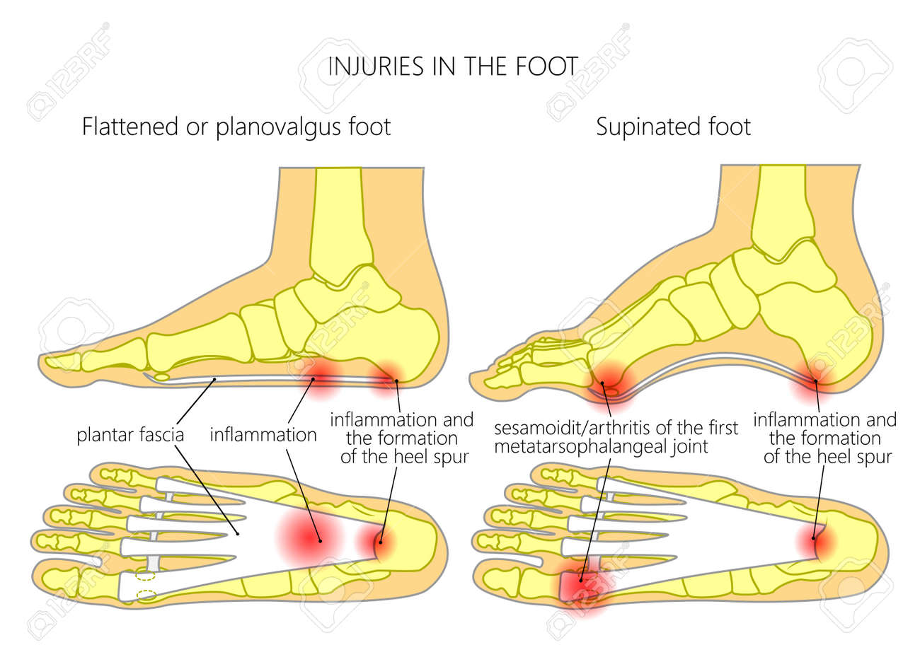 hight resolution of injuries in the foot plantar fasciitis heel spur and sesamoidit used gradient