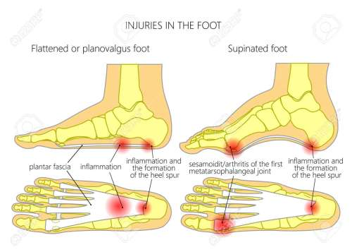 small resolution of injuries in the foot plantar fasciitis heel spur and sesamoidit used gradient