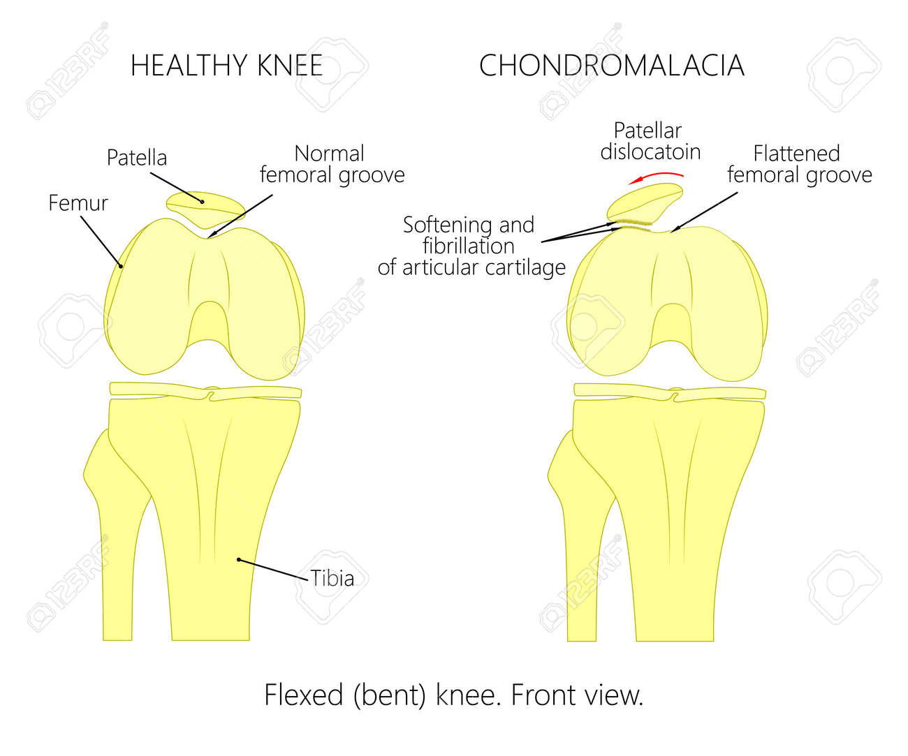 hight resolution of illustration diagram of normal knee joint and a knee with chondromalacia patella flexed