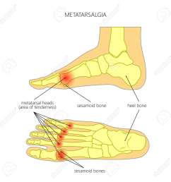vector vector diagram of forefoot pain metatarsalgia symptom tenderness in the balls of metatarsal bones of the foot used gradient transparency  [ 1300 x 1300 Pixel ]