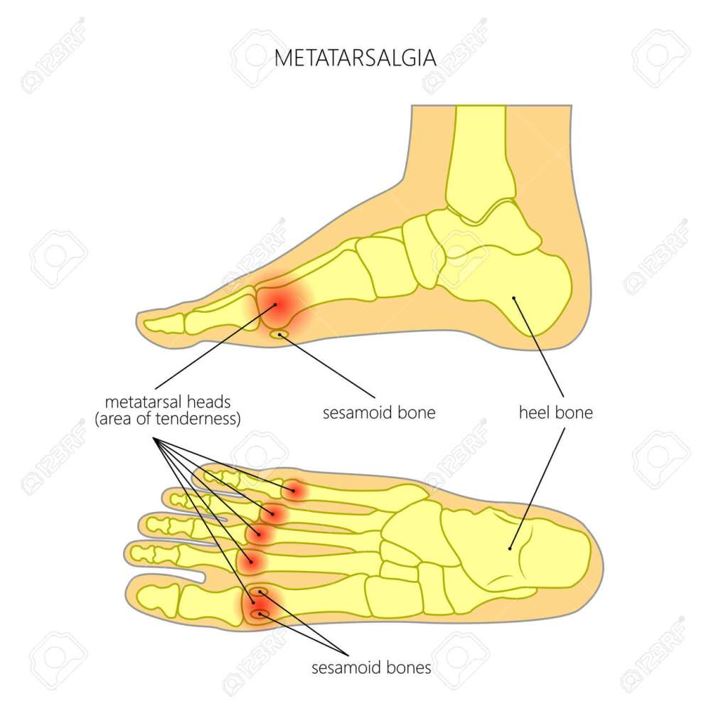 medium resolution of vector vector diagram of forefoot pain metatarsalgia symptom tenderness in the balls of metatarsal bones of the foot used gradient transparency