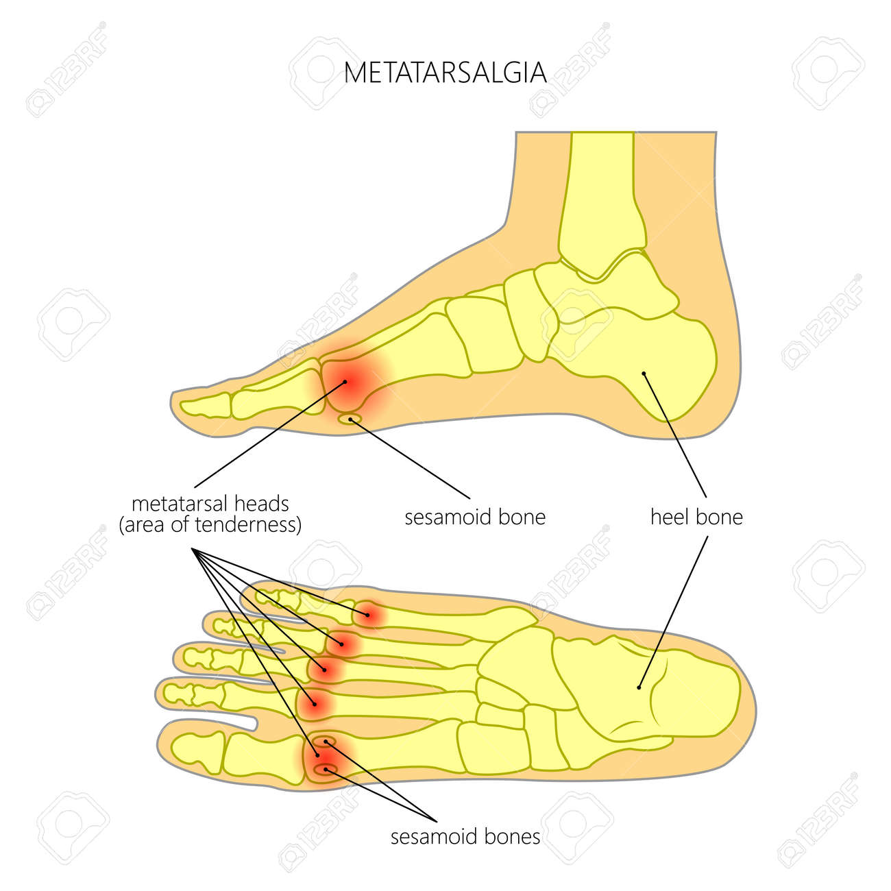 hight resolution of vector vector diagram of forefoot pain metatarsalgia symptom tenderness in the balls of metatarsal bones of the foot used gradient transparency