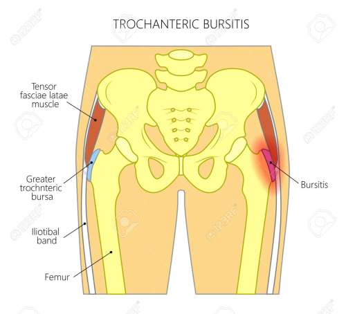 small resolution of vector vector illustration of a human pelvis and hip with pain in the hip joint and trochanteric bursitis front view for advertising and medical