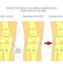 vector vector illustration anatomy of a knee joint with healthy ligaments and sprain tear or rupture of medial collateral ligament front view of  [ 1300 x 1000 Pixel ]