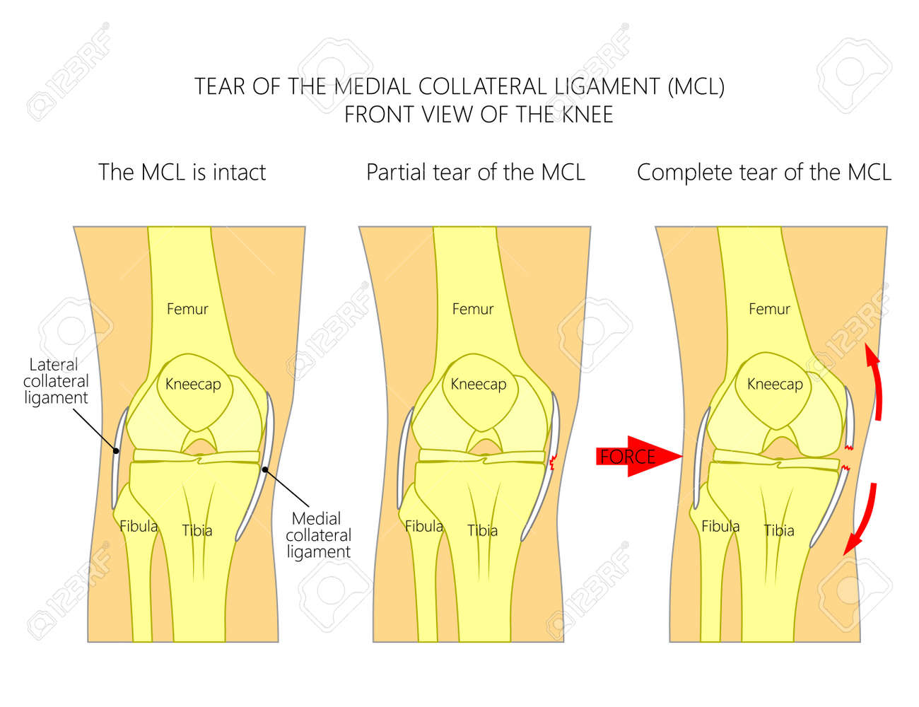 hight resolution of vector vector illustration anatomy of a knee joint with healthy ligaments and sprain tear or rupture of medial collateral ligament front view of