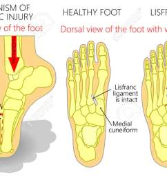 vector vector illustration of a healthy human foot and a foot with lisfranc injury with weight bearing and mechanism of injury  [ 1300 x 742 Pixel ]