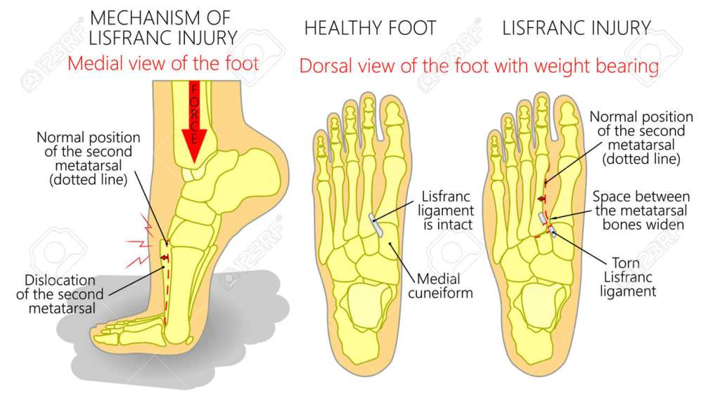 medium resolution of vector vector illustration of a healthy human foot and a foot with lisfranc injury with weight bearing and mechanism of injury