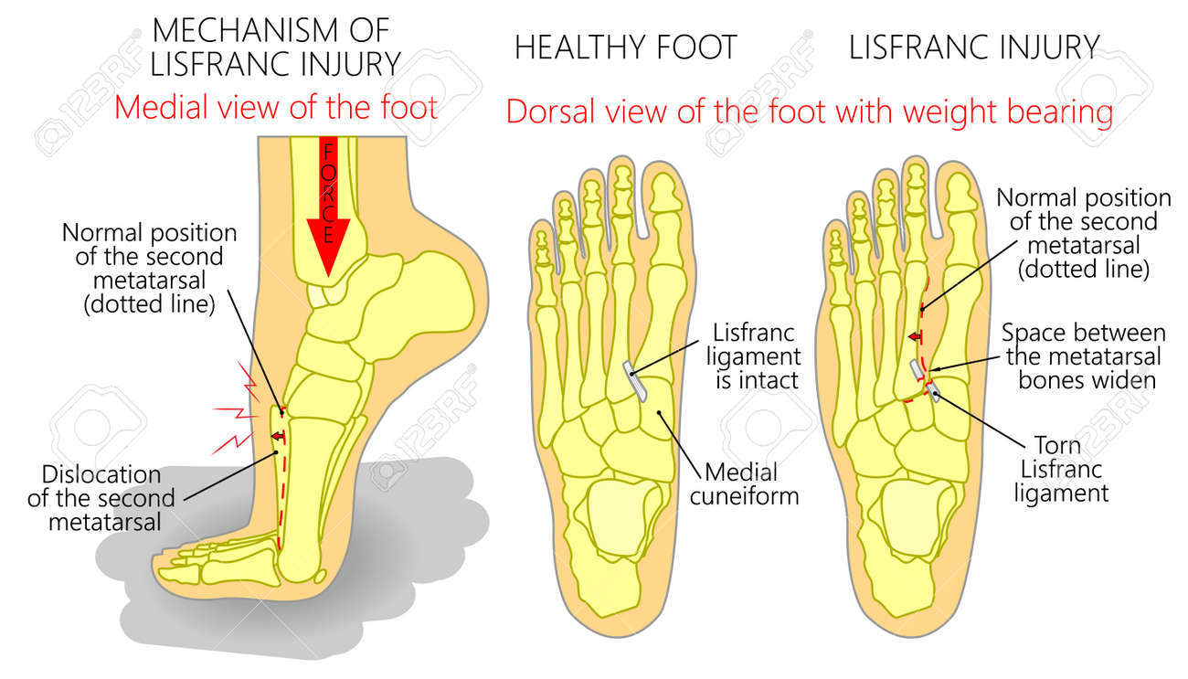 hight resolution of vector vector illustration of a healthy human foot and a foot with lisfranc injury with weight bearing and mechanism of injury