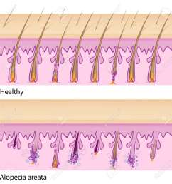 normal hair and alopecia areata royalty free cliparts vectors and alopecia areata diagram normal [ 1300 x 1300 Pixel ]