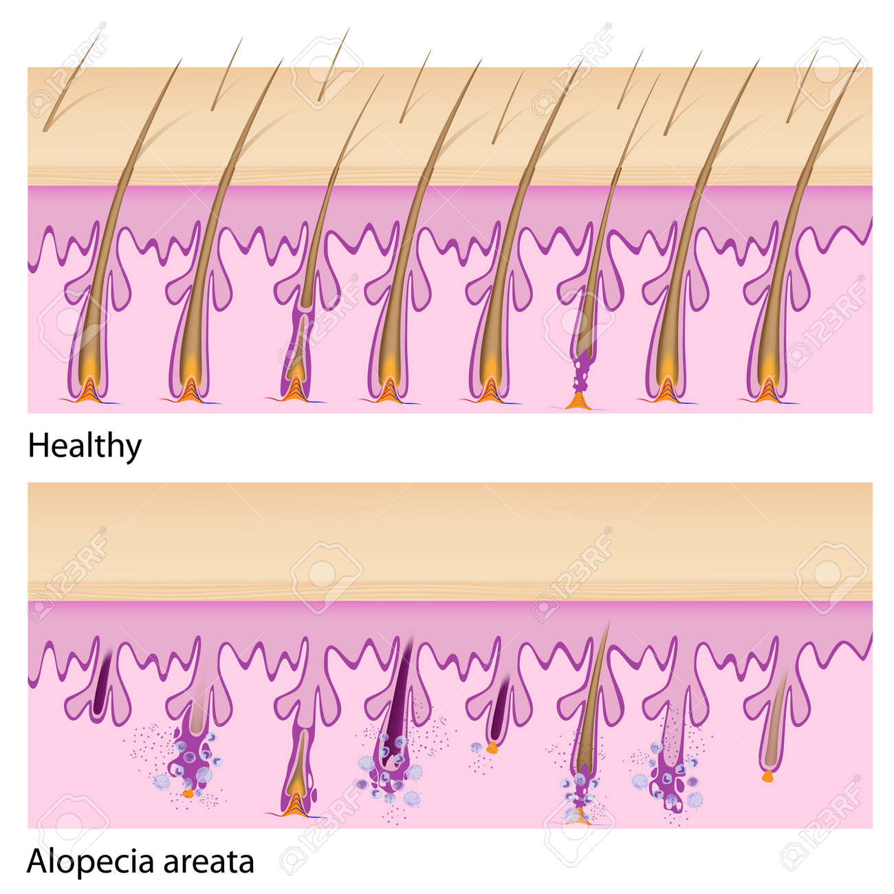 hight resolution of normal hair and alopecia areata royalty free cliparts vectors and alopecia areata diagram normal