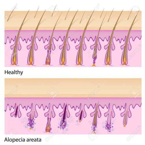 small resolution of normal hair and alopecia areata royalty free cliparts vectors and alopecia areata diagram normal