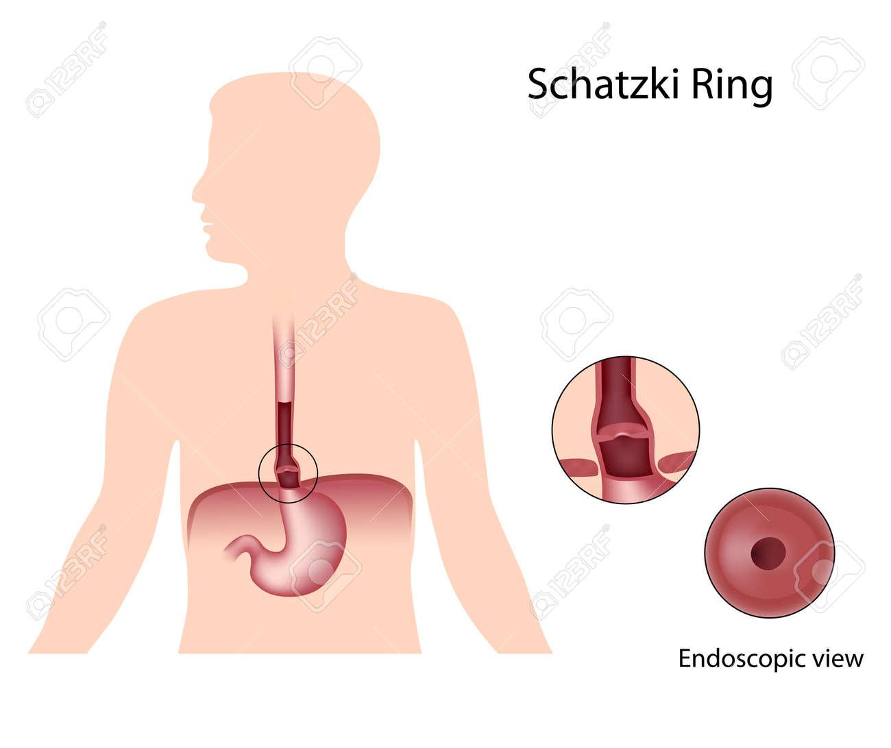 hight resolution of schatzki ring of lower esophagus stock vector 17999580