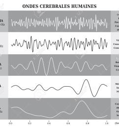 human brain waves diagram chart illustration in french black and white stock vector [ 1300 x 1126 Pixel ]