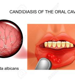 candidiasis of the oral cavity stock vector 103847412 [ 1300 x 910 Pixel ]