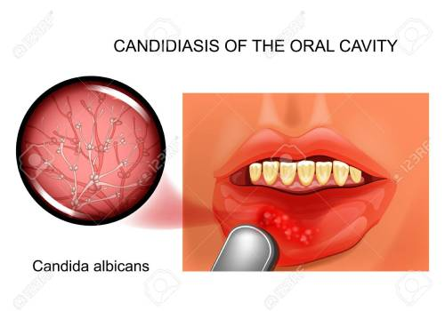 small resolution of candidiasis of the oral cavity stock vector 103847412