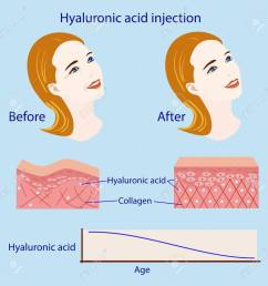 hyaluronic acid injection before and affect vector illustration diagram stock vector 87570992 [ 1300 x 1300 Pixel ]