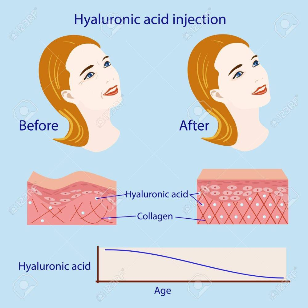 medium resolution of hyaluronic acid injection before and affect vector illustration diagram stock vector 87570992