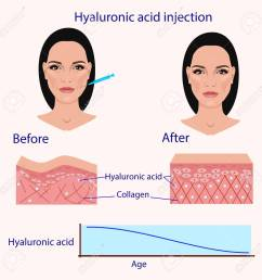 hyaluronic acid injection before and affect vector illustration diagram stock vector 87570993 [ 1300 x 1300 Pixel ]