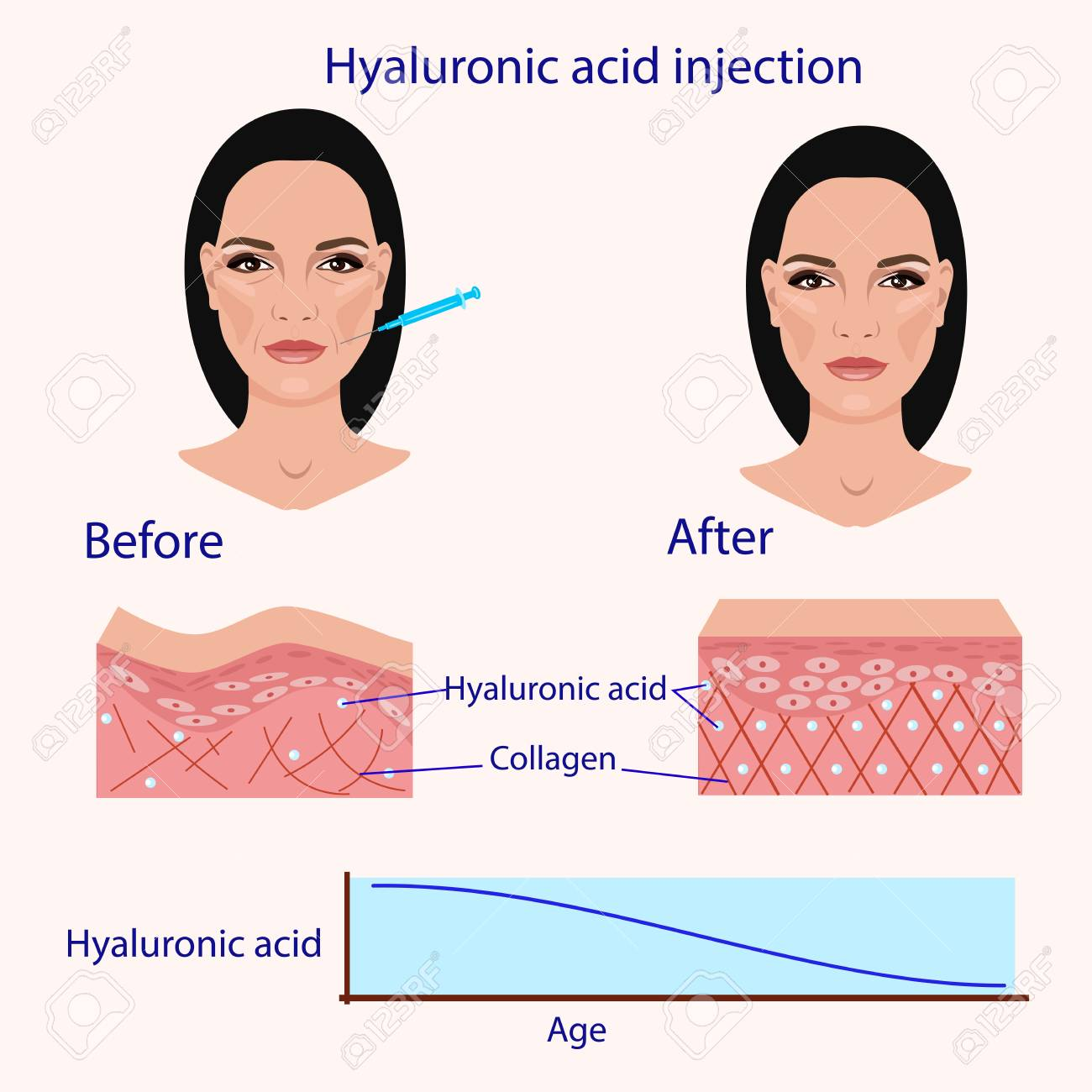 hight resolution of hyaluronic acid injection before and affect vector illustration diagram stock vector 87570993
