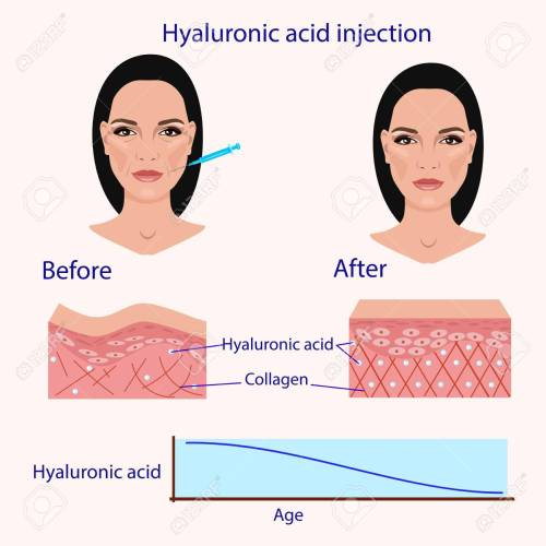 small resolution of hyaluronic acid injection before and affect vector illustration diagram stock vector 87570993