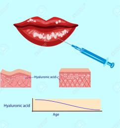 hyaluronic acid injection lips procedure vector illustration diagram stock vector 88355919 [ 1300 x 1231 Pixel ]