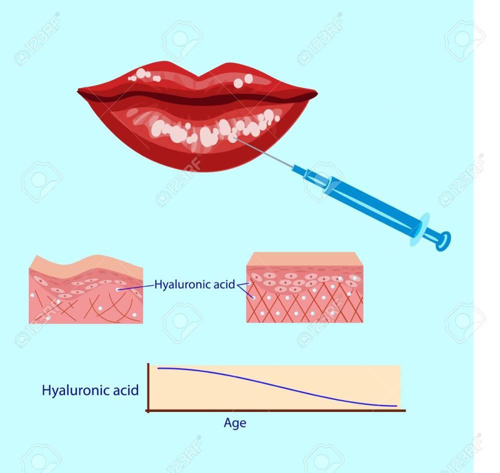 medium resolution of hyaluronic acid injection lips procedure vector illustration diagram stock vector 88355919