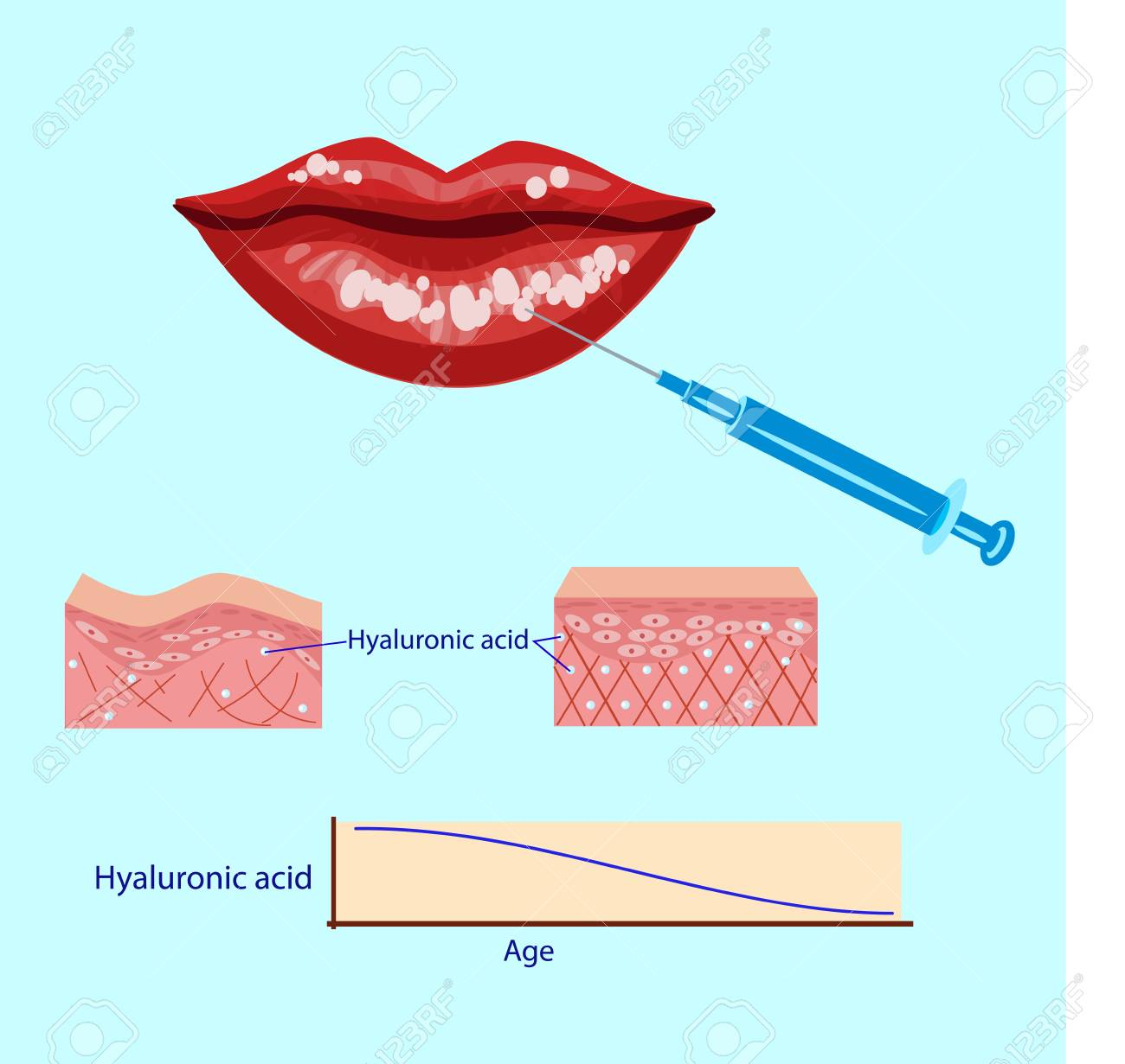 hight resolution of hyaluronic acid injection lips procedure vector illustration diagram stock vector 88355919