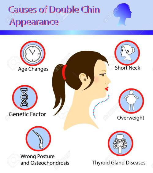 small resolution of causes of double chin vector illustration diagram royalty free botox injection diagram causes of double