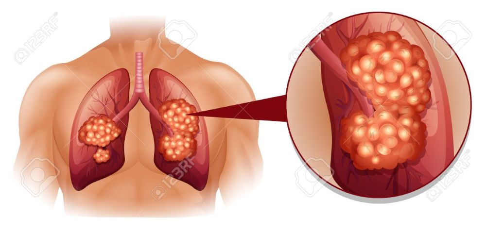 medium resolution of lung cancer diagram in details illustration stock vector 44054682