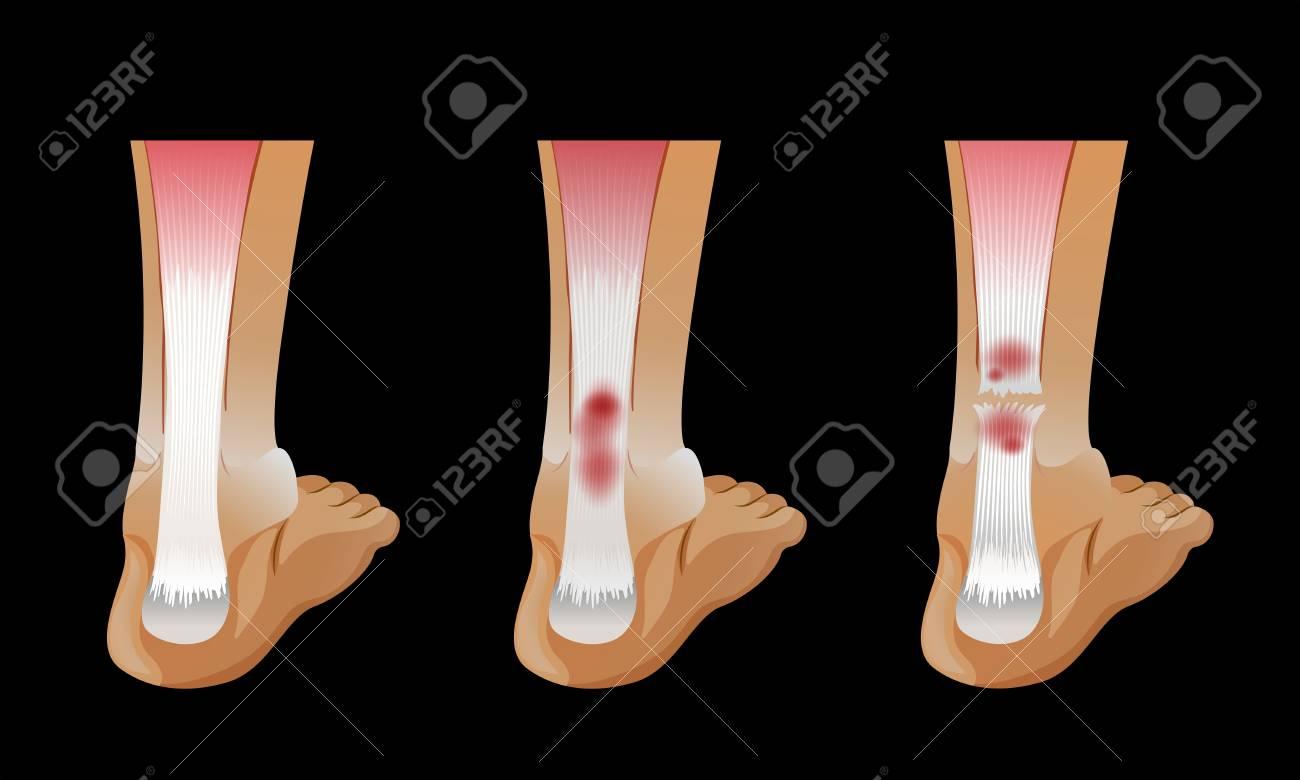 hight resolution of diagram showing broken bone in human foot illustration stock vector 96927023