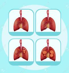 diagram showing different stages of lung cancer illustration stock vector 96927029 [ 1300 x 1255 Pixel ]