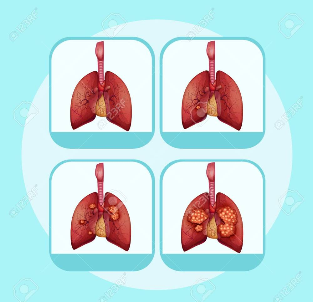 medium resolution of diagram showing different stages of lung cancer illustration stock vector 96927029