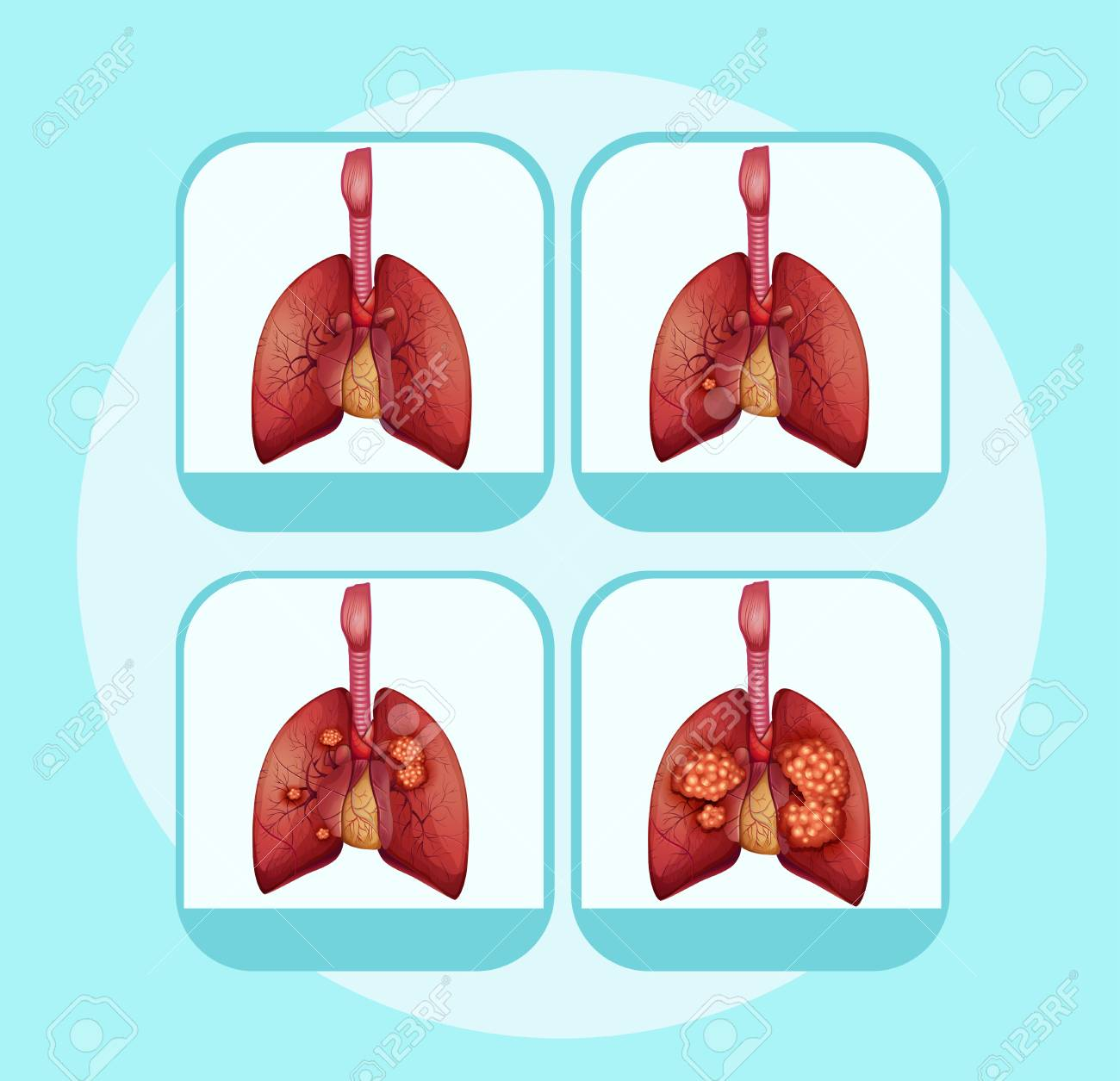 hight resolution of diagram showing different stages of lung cancer illustration stock vector 96927029