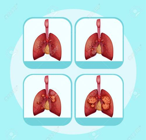 small resolution of diagram showing different stages of lung cancer illustration stock vector 96927029