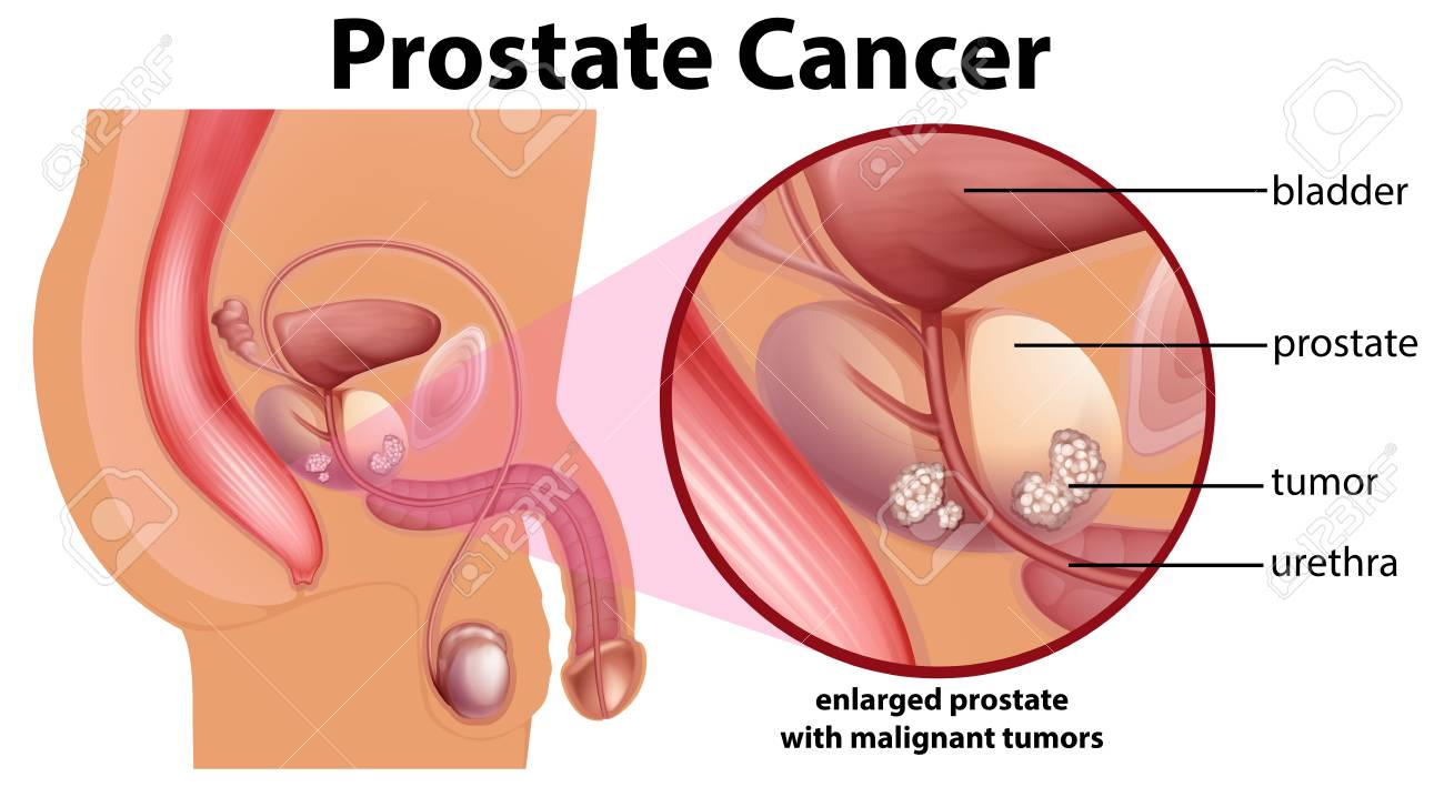 hight resolution of diagram of prostate cancer illustration stock vector 103212013