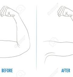 female biceps before and after sport arms showing progress after fitness bent arm with [ 1300 x 866 Pixel ]