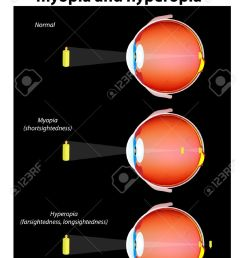 human eye defects myopia and hyperopia the image projected onto the retina is inverted due to [ 917 x 1300 Pixel ]