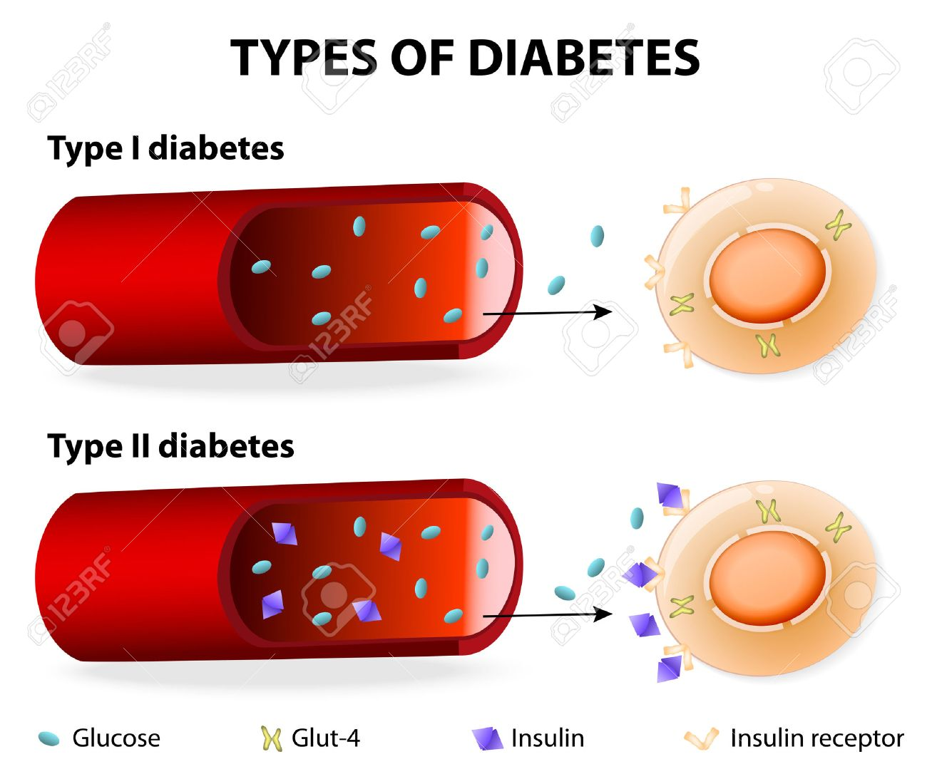 Image result for diabetes mellitus