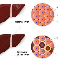 cirrhosis of the liver and normal liver structure of the liver vector diagram stock vector  [ 1300 x 968 Pixel ]