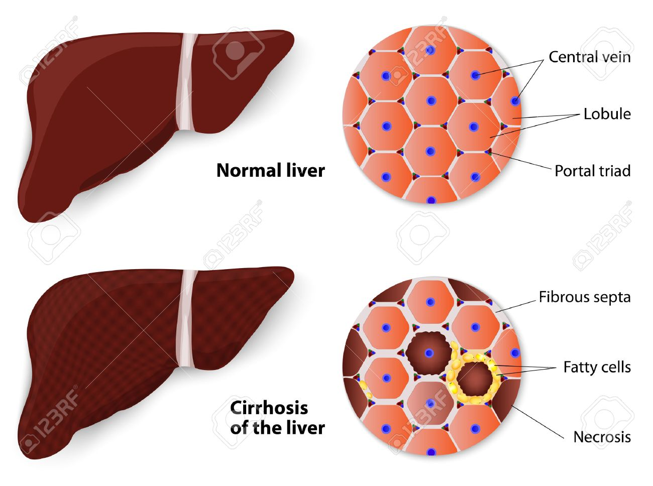hight resolution of cirrhosis of the liver and normal liver structure of the liver vector diagram stock vector