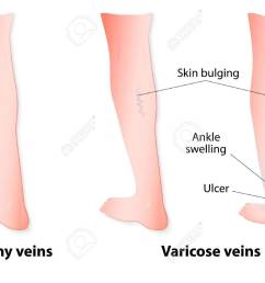 varicose veins are twisted and enlarged veins blue in color linked to faulty valves in [ 1300 x 977 Pixel ]