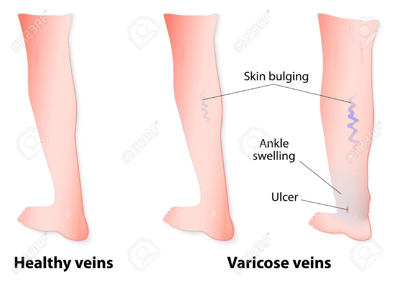 hight resolution of varicose veins are twisted and enlarged veins blue in color linked to faulty valves in
