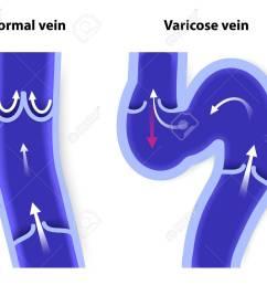 healthy vein and varicose vein human veins vector diagram stock vector 30673881 [ 1300 x 1069 Pixel ]