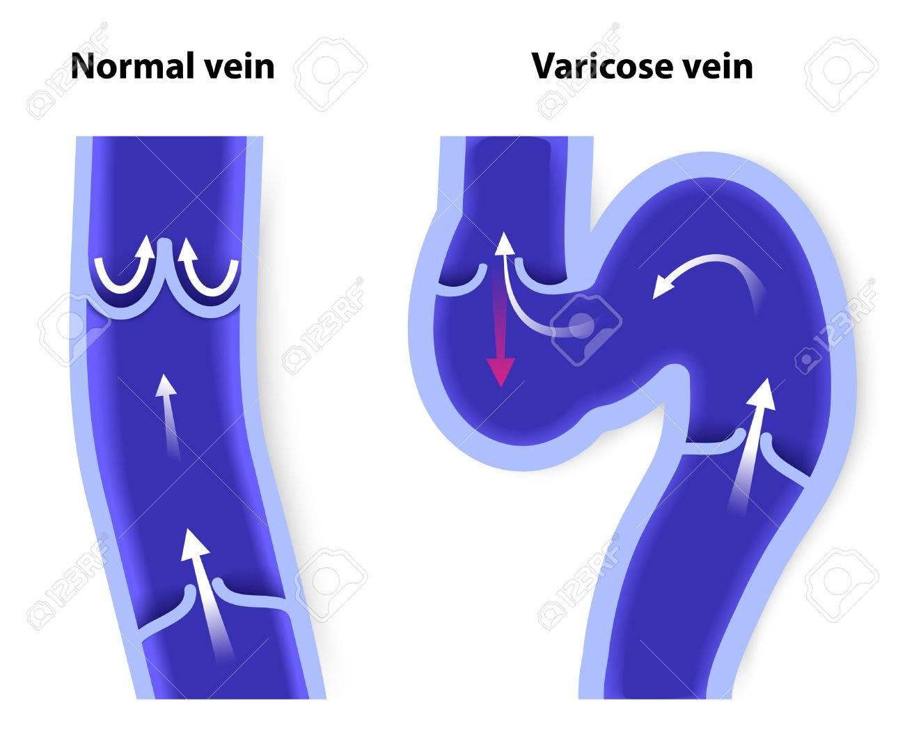 hight resolution of healthy vein and varicose vein human veins vector diagram stock vector 30673881